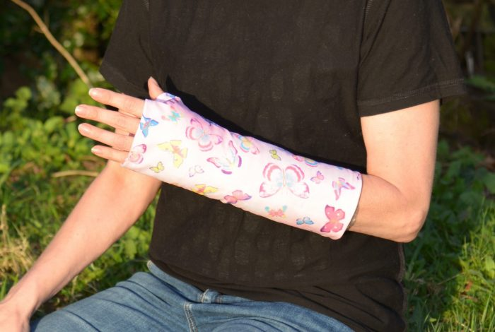cover for broken arm casts