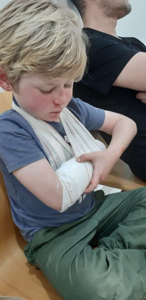 Little boy with broken arm